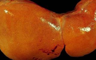 Гепатомегалия (увеличение печени): причины, лечение, симптомы