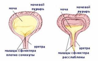 Слабый мочевой пузырь у женщин — симптомы и методы лечения