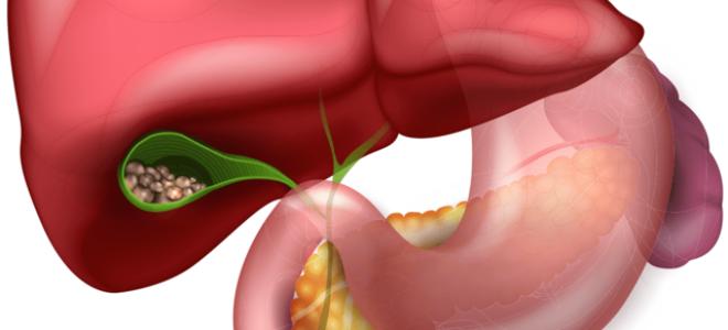 Что такое гепатоспленомегалия и как ее лечить