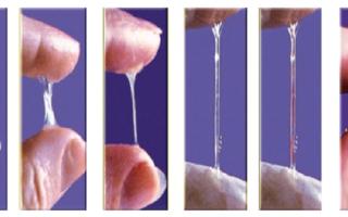 Выделения у мужчины: физиологические и патологические