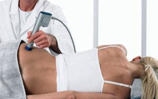 Копчиковая грыжа: симптомы, способы лечения и последствия
