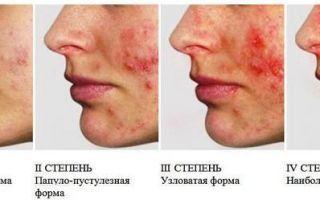 ᐈ Аллергический сыпь фотографии, фото аллергическая сыпь ...   200x320