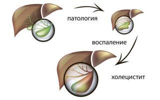 Эффективные методы лечения бескаменного холецистита