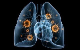 Инфекционная пневмония: симптомы и признаки воспаления легких