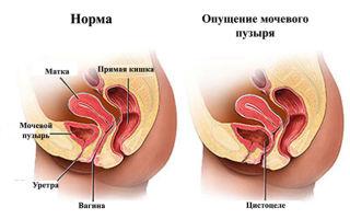 Опущение мочевого пузыря — симптомы, диагностика, лечение