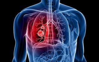 Деформирующий бронхит: симптоматика и причины возникновения
