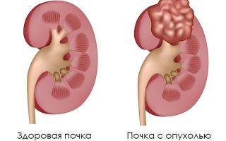 Хромофобный рак почки: симптомы, причины, лечение, прогноз и осложнения