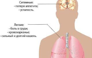 Ифа на туберкулез или иммуноферментный анализ на туберкулез