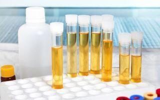 Лейкоциты в моче — что это значит и что является причиной