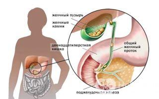 Что такое холецистит и как его вылечить