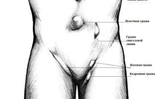 Грыжа живота у женщин: признаки и симптомы патологии, методы терапии болезни