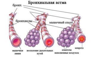 Одышка при бронхиальной астме: причины появления и профилактика