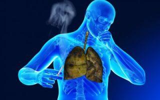 Туберкулез и курение — почему курение провоцирует заболевание