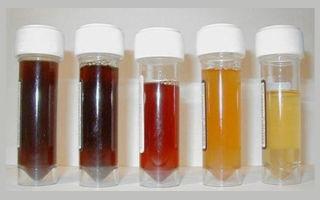 О чем говорит кровь в моче: причины и методы лечения гематурии