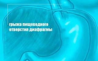 Грыжа диафрагмальная: виды, симптомы и методы лечения болезни
