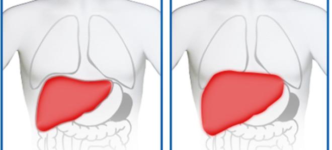 Что скрывается за гепатомегалией и нужно ли лечить проблему