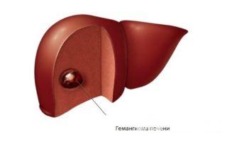 Что такое гемангиома печени и как ее лечить