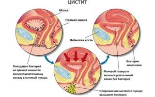 Дефлорационный цистит: причины, симптомы, методы лечения и возможные осложнения