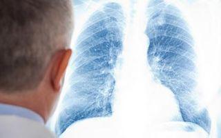 Может ли туберкулез протекать без симптомов — без кашля и температуры