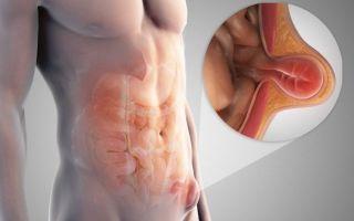 Паховая грыжа: симптомы и методы лечения патологии