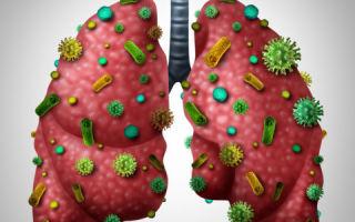 Пневмоцистная пневмония у вич инфицированных — лечение