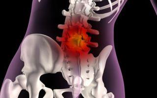 Как лечить грыжу позвоночника на уровне L3-L4: методы и средства терапии