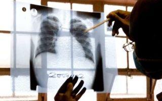 Сало при туберкулезе — народные рецепты и их польза
