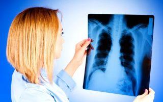 Кашель при туберкулезе легких: какой бывает и как его лечить