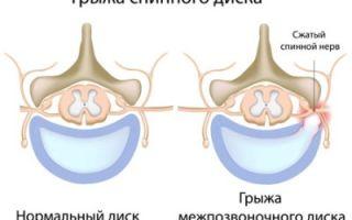 Секвестрированная грыжа поясничного отдела позвоночника: схемы лечение