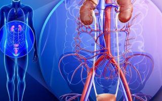 Лейкоплакия мочевого пузыря: причины, симптомы, методы лечения, прогноз и профилактика