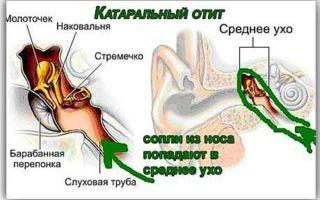 Симптомы и лечение катарального отита