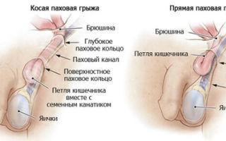 Мошоночная грыжа: операция и этапы лечения патологии