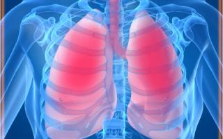 Кашель после пневмонии: лекарства и народная медицина