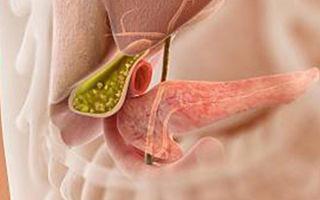 Способы лечения холелитиаза у взрослых и дальнейшая профилактика