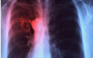 Подозрение на туберкулез — что делать, как диагностируют туберкулёз