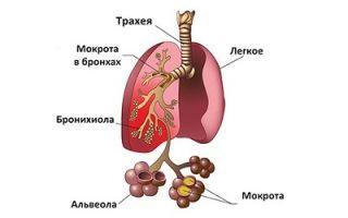 Пневмонию чем лечить: лекарства и принципы терапии