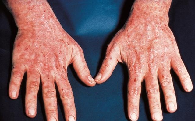 Заболевание порфирия: что это, как лечить