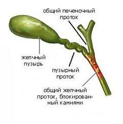 Возможные патологии желчных и печеночных протоков