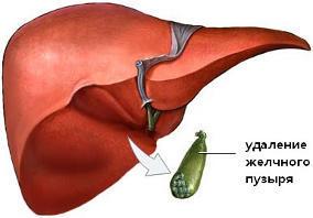 Какие есть ограничения по питанию при удалении желчного пузыря