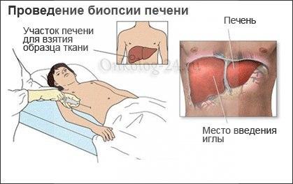 Что показывает биопсия печени
