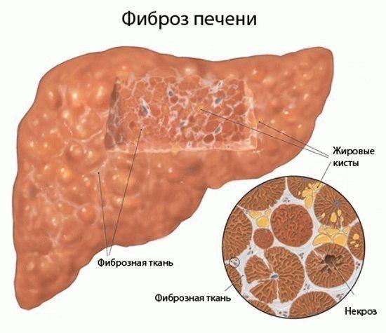 Что показывает количественный анализ на гепатит С