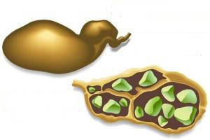 Желчный пузырь и его роль в организме человека