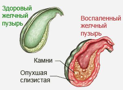 Народные рецепты для лечения желчного пузыря