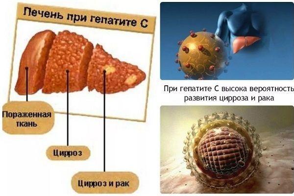 Что будет, если не лечить гепатит С: опасные последствия