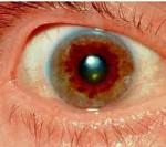 Синдром Вильсона-Коновалова – наследственная болезнь, с которой можно жить