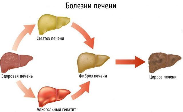 Что делать при болях в области печени