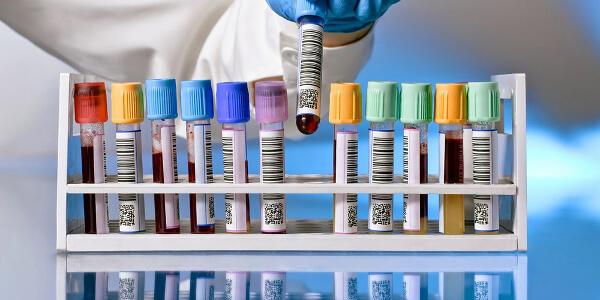 Диагностические методы для определения вируса гепатита