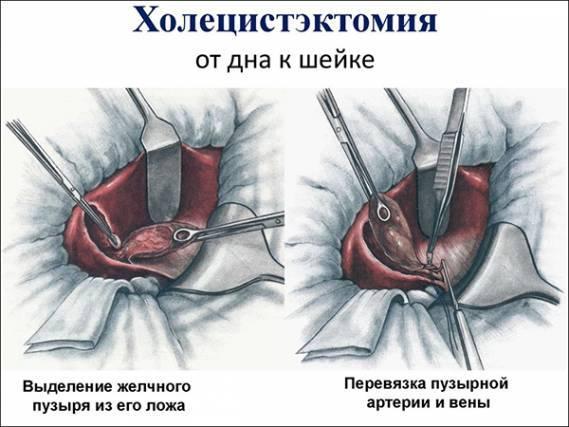 В каких случаях удаляют желчный пузырь и каковы особенности операции