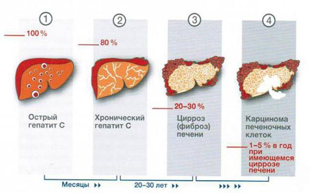 Основные признаки гепатита C у мужчин