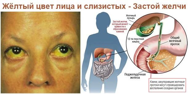 Симптомы при застое желчи и способы лечения